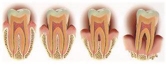歯が抜ける過程