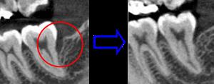 エムドゲイン 失った骨の再生治療