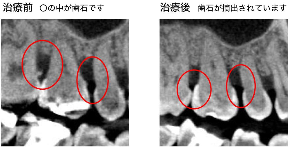 歯石摘出の症例